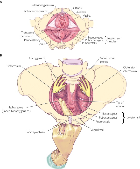 Recognition And Management Of Nonrelaxing Pelvic Floor