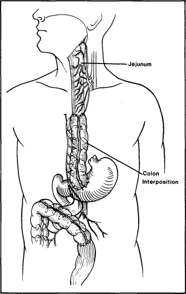 Salvage Of A Failed Colon Interposition In The Esophagus