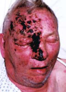 Herpes Zoster Shingles And Postherpetic Neuralgia Mayo